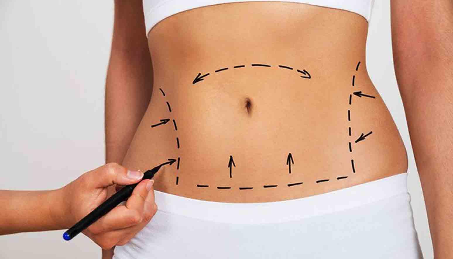 fettsuging og andre ulike inngrep